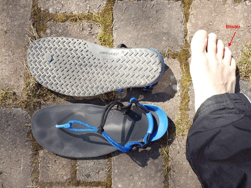 Xero Shoes huarache running sandals blister